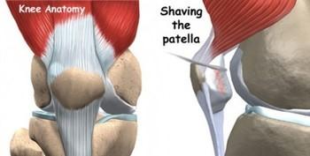 Runner's Knee – Symptoms, Treatment & Prevention Exercises Thumbnail