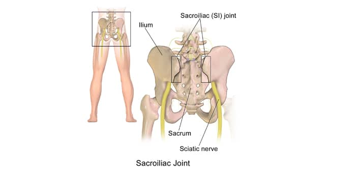Understanding Sacroiliac Joint Dysfunction and Pain Thumbnail